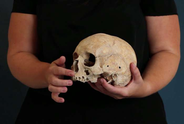Skin and Bone I